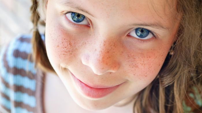 Are Freckles Hereditary?