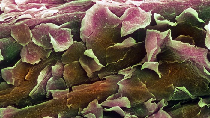 What Is the Function of the Dermis Layer of Cells?
