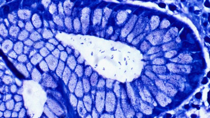Is H. Pylori Contagious?