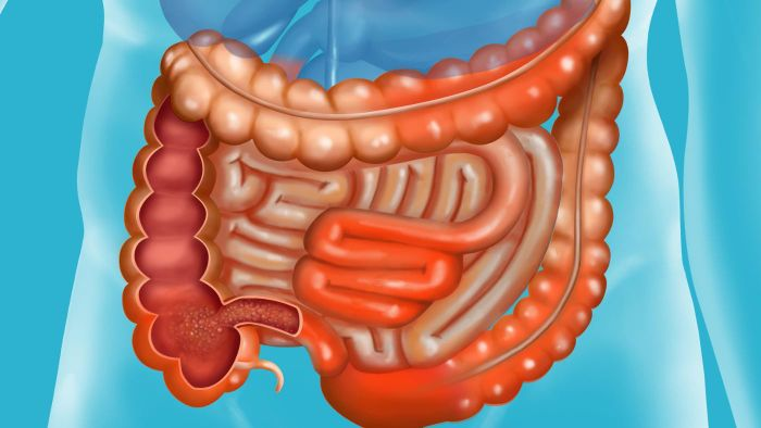 What Happens in the Small Intestine?