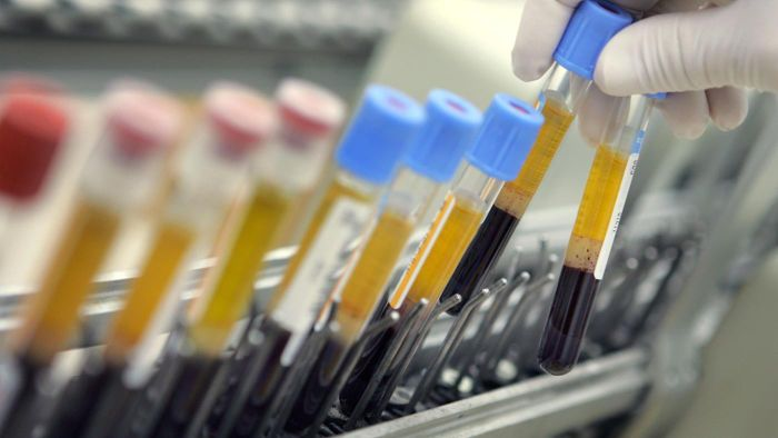What is HCT in a blood test?