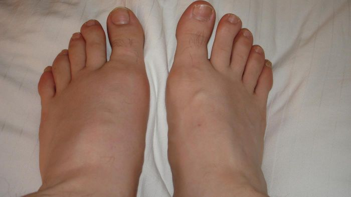 What are some home remedies for gout pain?