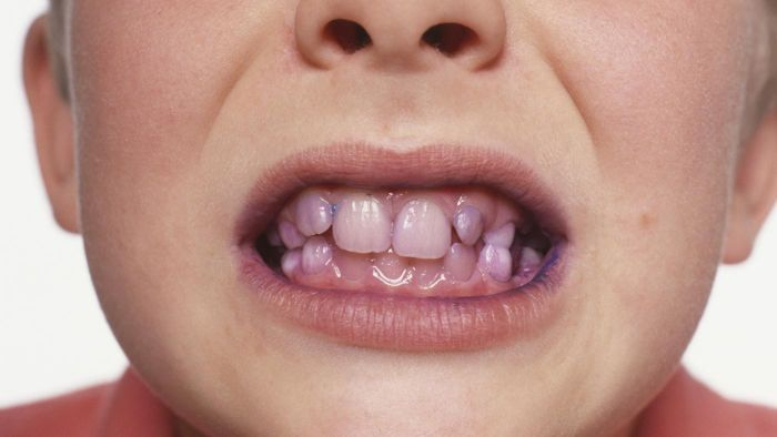What Is a Home Remedy to Remove Plaque From Teeth?