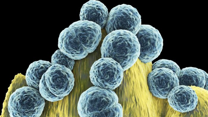How Do You Identify the Symptoms of MRSA?