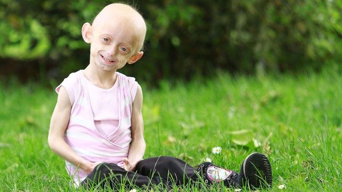 What Are Some Interesting Facts About Progeria?