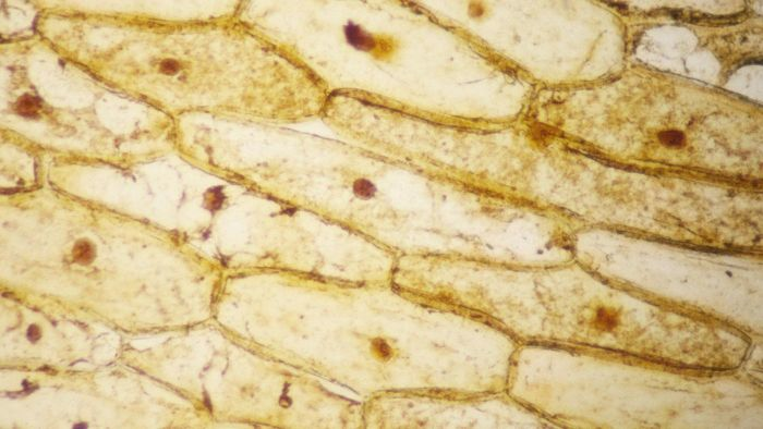 Why Is Iodine Stain Used on Onion Cells?