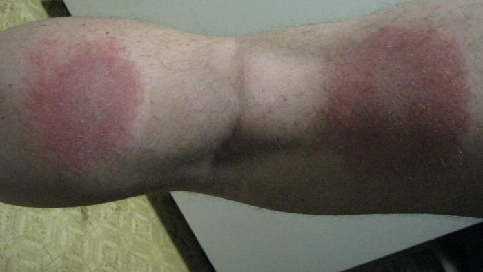 What kind of skin rash causes burning?