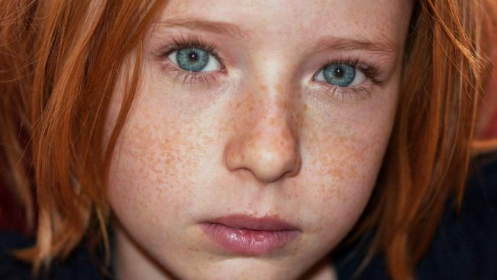 Does Lemon Juice Really Get Rid of Freckles?