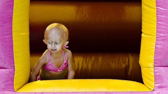 How Long Can You Live With Progeria?