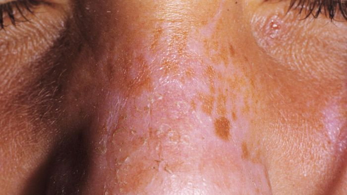 How long does it take a first-degree burn to heal?