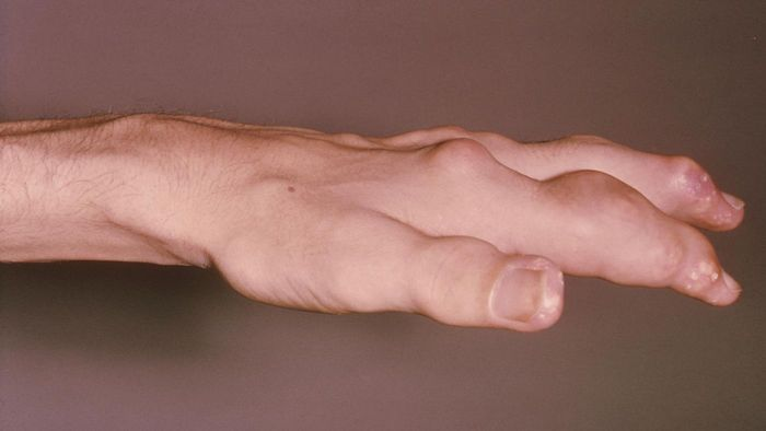 How Long Does a Gout Attack Last?