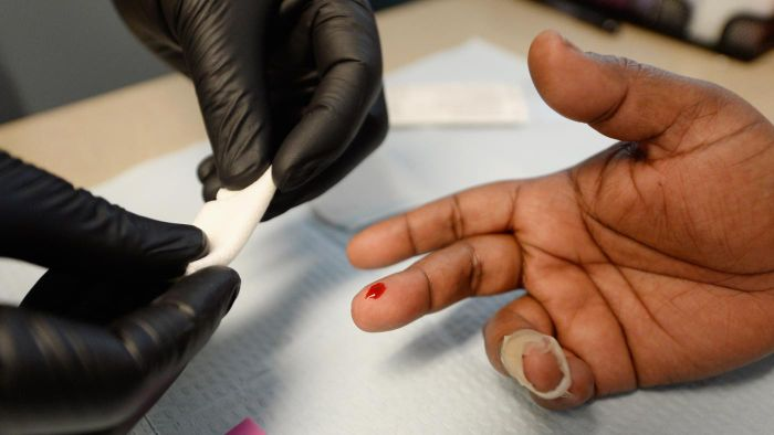 How long does it take for HIV to show up on tests?