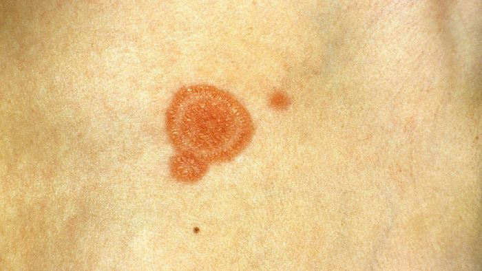 How Long Does Ringworm Last?