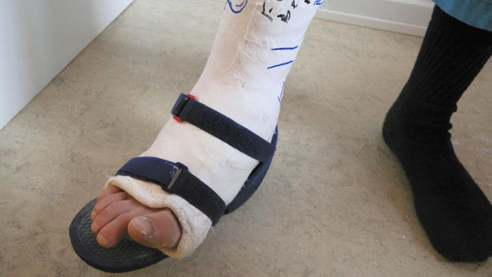 How Long Should It Take for the Swelling to Go Out of a Broken Ankle?