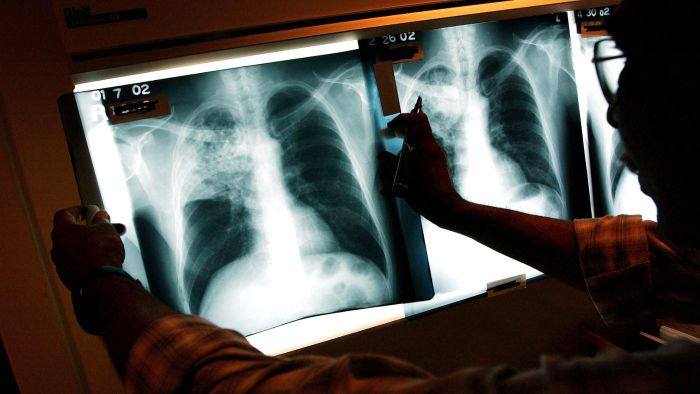 What Are the Long-Term Effects of Tuberculosis?