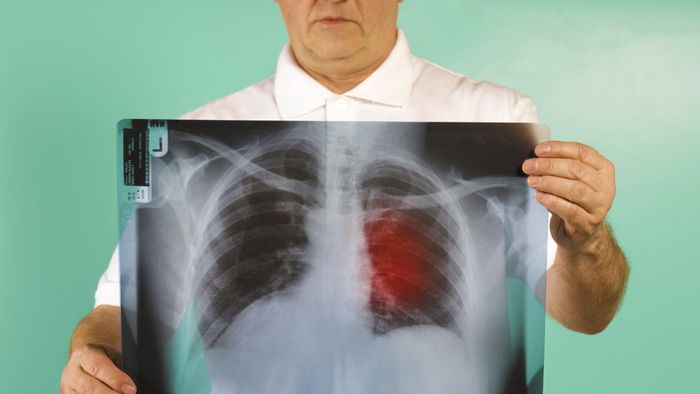 Is Lung Cancer Curable?