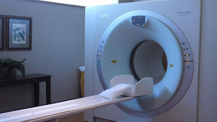 Are Lung Nodules on a CT Scan Indicative of Cancer?
