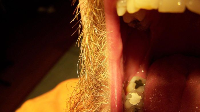 How Do You Make a Homemade Tooth Filling?