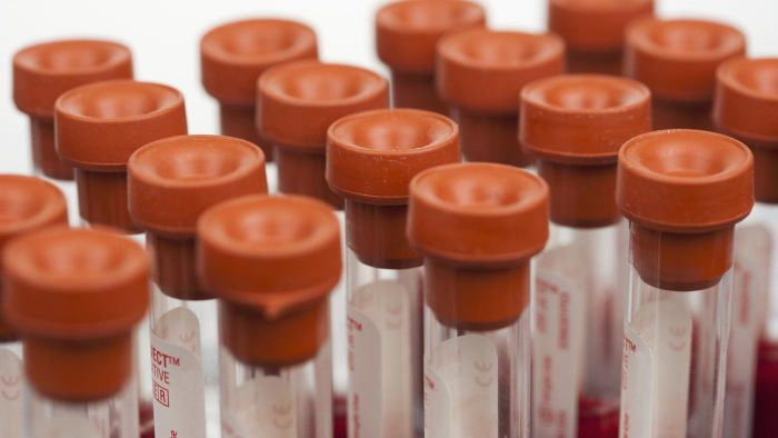 What is the microalbumin creatinine ratio?