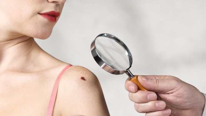 How Are Moles Removed Without Surgery?