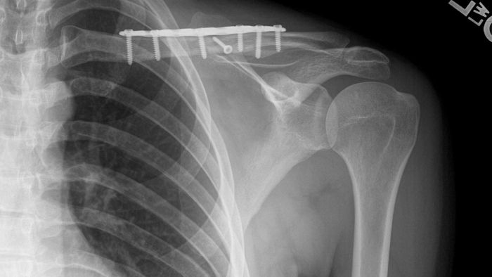 How Much Pressure Breaks a Clavicle?