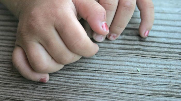 What Is a Nail Fungus Home Remedy?