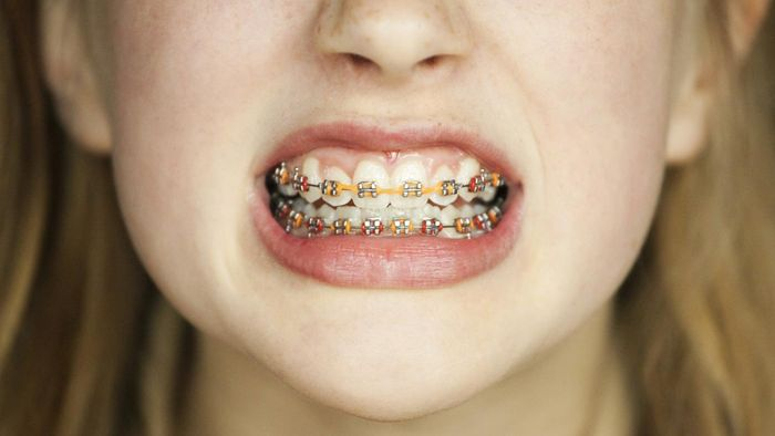 Does PeachCare Cover Braces?
