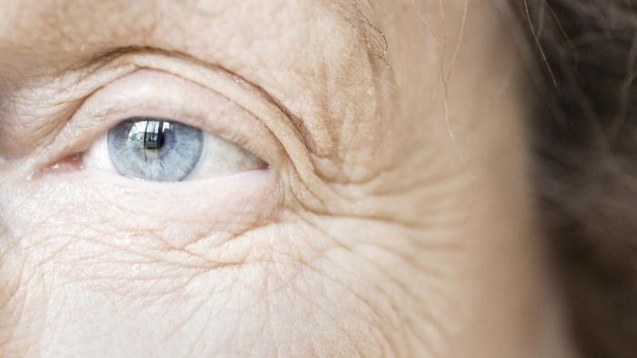 Why Do People Get Wrinkles?