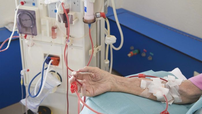 What are the possible side effects of dialysis?