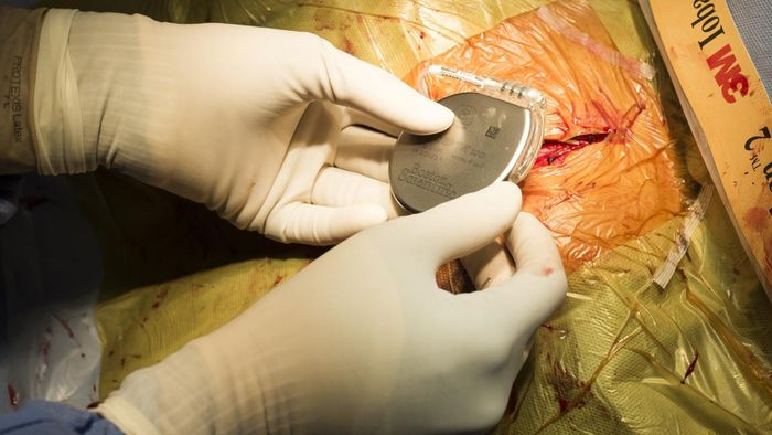 What Is the Recovery Process for Pacemaker Surgery Patients?