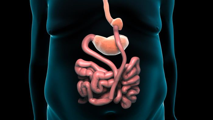 What is the recovery time for gastric bypass surgery?