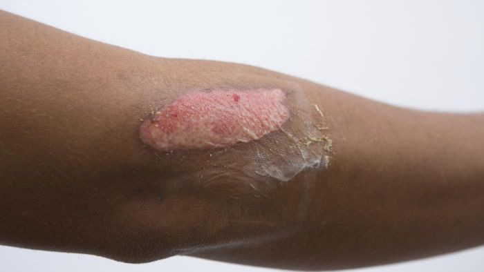 How do you remove burn scars?