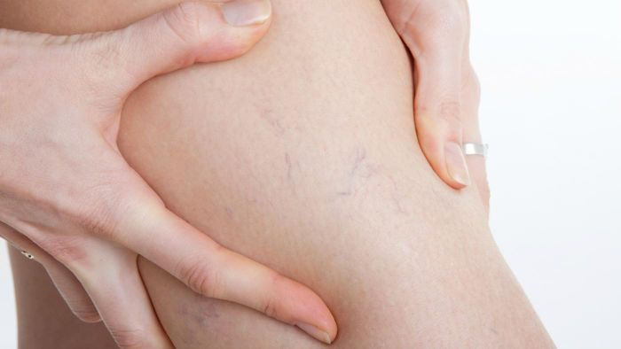 How Do You Get Rid of Varicose Veins?
