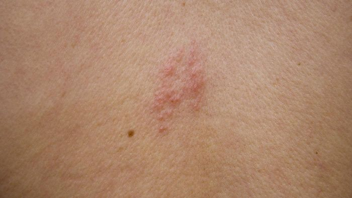 Is the Shingles Virus Contagious?