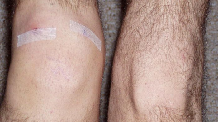 Should a person elevate a swollen knee?