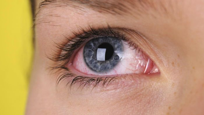 Should Pictures of Eyes With Viral Infections Be Used for Self-Diagnosis?