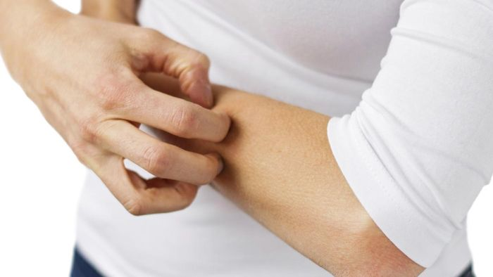 Are Skin Rashes Caused by Lupus Painful?