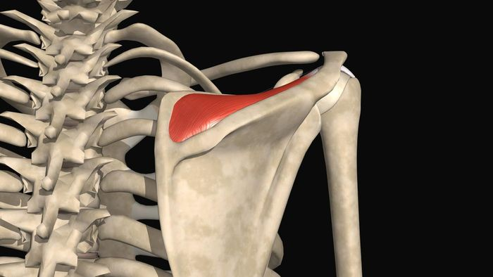 What Is a Small Tear of the Interstitial Distal Supraspinatus Tendon?