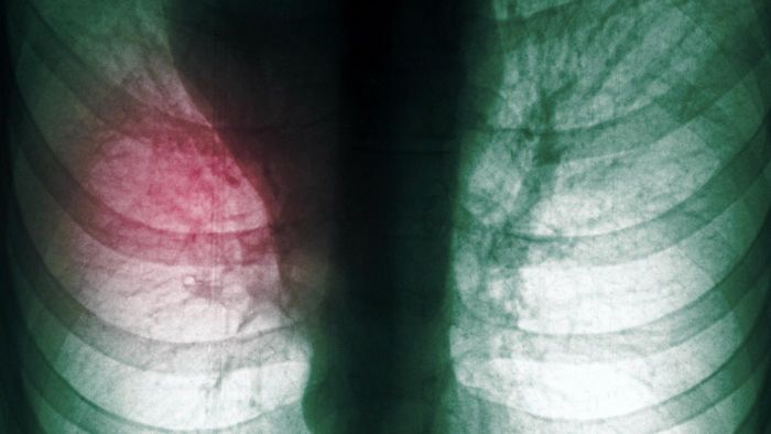 Is Surgery the Only Option for Pleural Effusions?