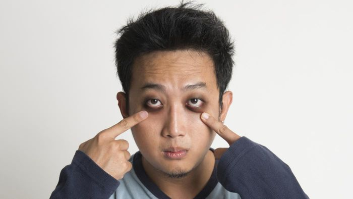 Is There a Surgery to Remove Bags Under the Eyes?