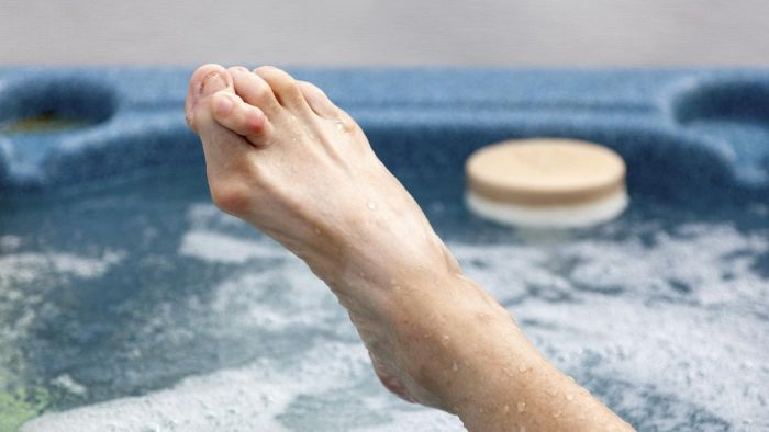 Are There Surgical Remedies for Hammer Toes?