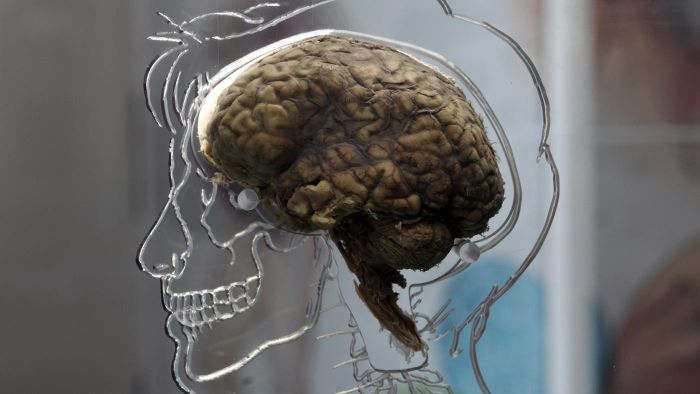 What Are the Symptoms of a Brain Lesion?