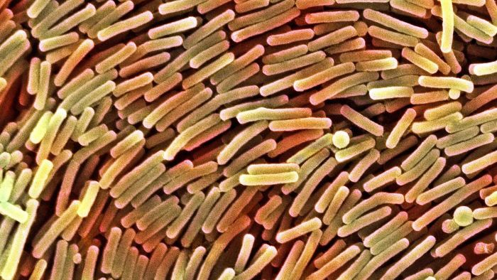 What Are the Symptoms of C Diff Disease?