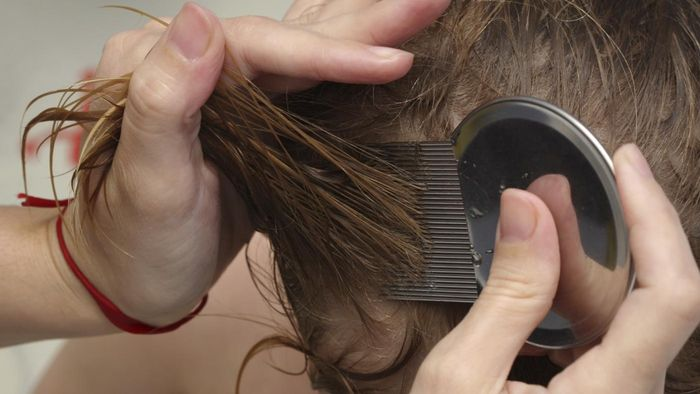 What Are the Symptoms of Head Lice?
