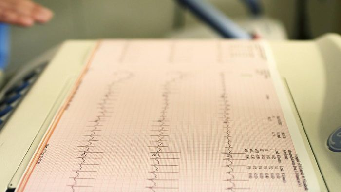 What Are the Symptoms of Irregular Heartbeat?