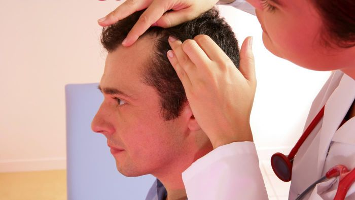 What are the symptoms of scalp folliculitis?