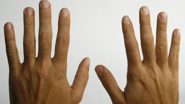 Is Tingling in Hands a Sign of Something Serious?