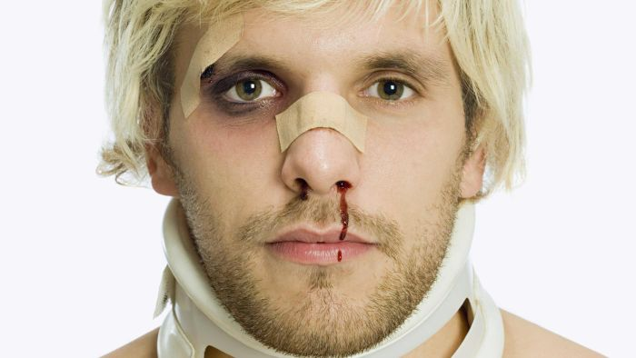 How Do You Treat a Bruised Nose?