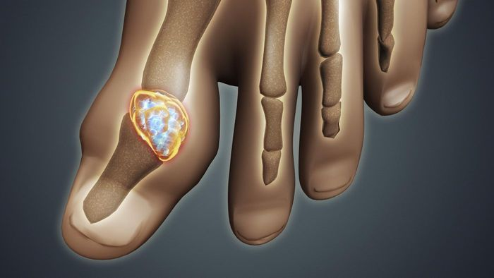 How do you treat gout at home?