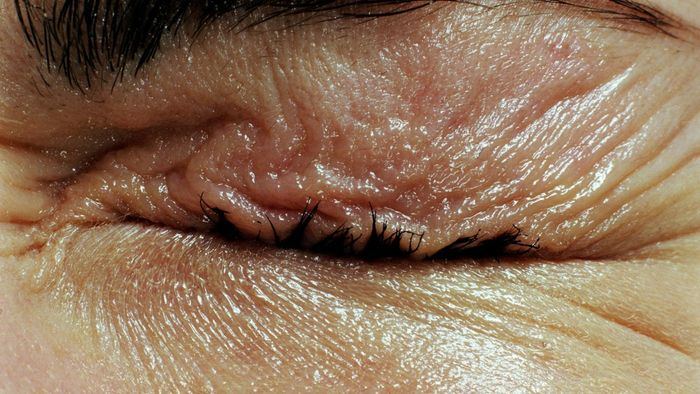 What Is the Treatment for an Eye Stye?